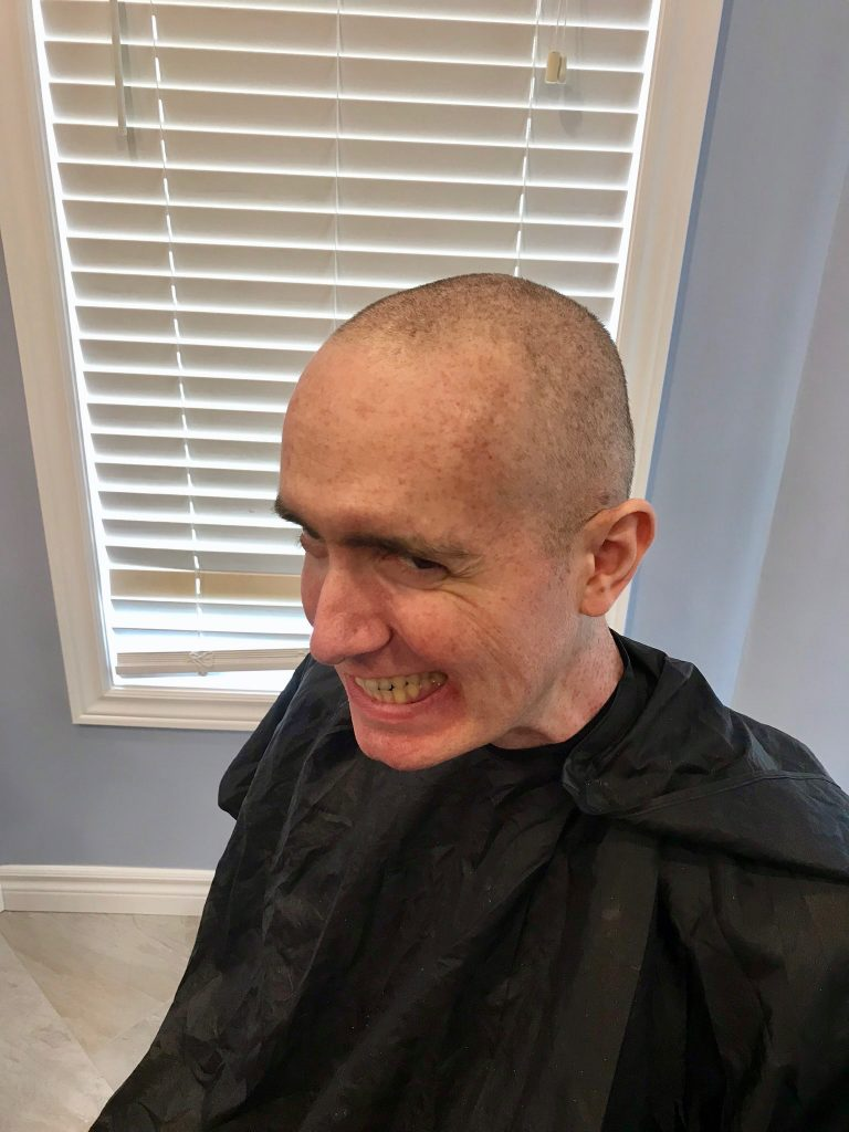 No hair John